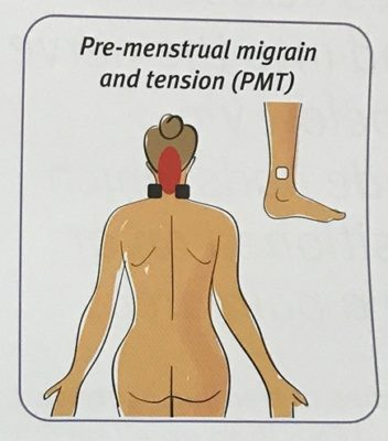 TENS pad placement for pre-menstrual migraine and tension