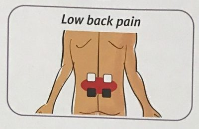 TENS pad placement lower back pain