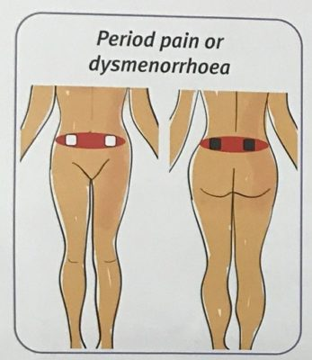 TENS pad placment for period pain